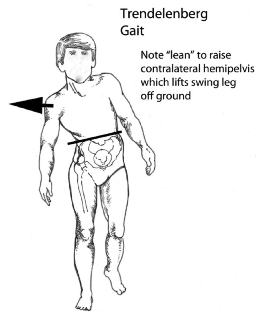 walking disorders - how nerve and joint injuries change gait, Muscles