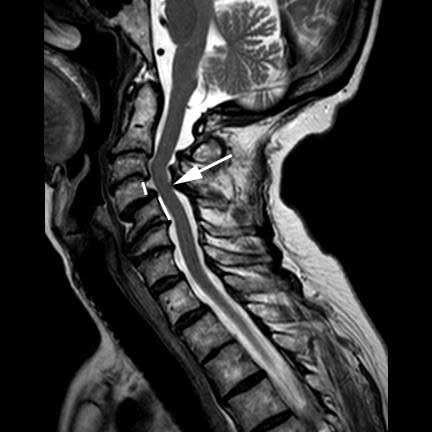 degenerative anterior listhesis Anterolisthesis and retrolisthesis of the cervical spine in cervical spondylotic myelopathy in significance of anterior and posterior degenerative.