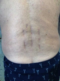 Two Level Minimally Invasive Lumbar Fusion Scars